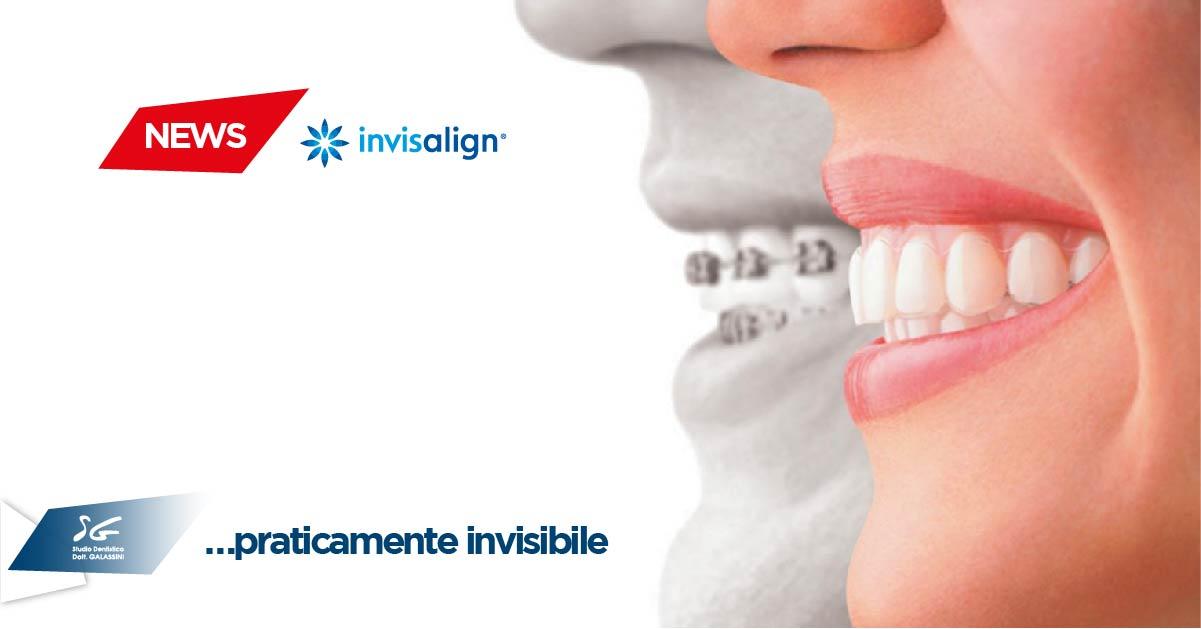 foto ufficiali prese di fabbrica trova fattura Ortodonzia invisibile invisalign: Studio Dentistico Dott ...