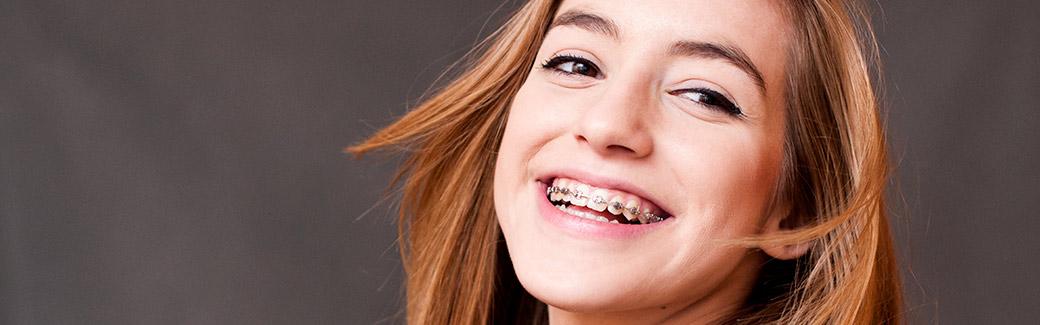 ortodonzia-dell-adolescente