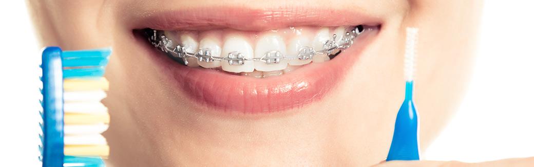 ortodonzia-dell-audulto