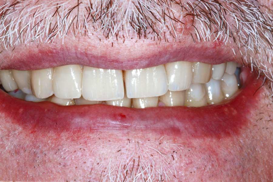 Protesi | Dentista a Formigine | Studio dentistico Galassini
