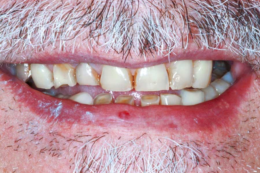 Protesi |Dentista a Formigine | Studio dentistico Galassini
