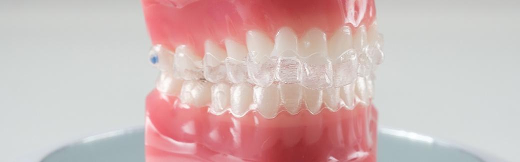 Dentista Galassini   Ortodonzia trasparente