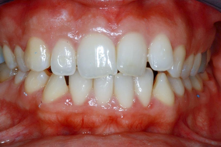 Estetica dentale | Studio dentistico Galassini