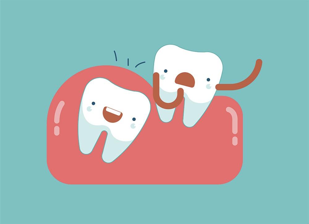 Estrazione dente del giudizio: come?
