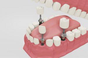 cosa fare dopo impianto dentale