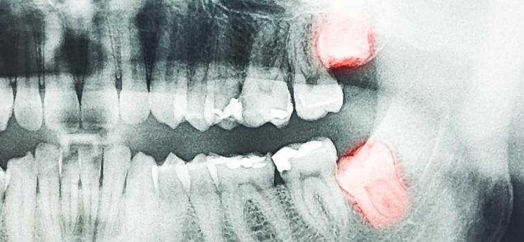 Estrazione dente del giudizio: quando è necessaria?