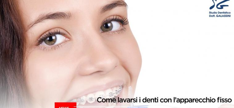 Come lavarsi i denti con l'apparecchio fisso?